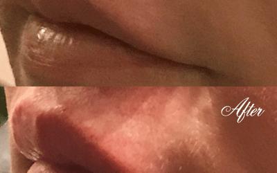 Lip Enhancement (Testimonial)