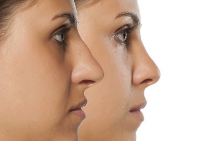 Non-Surgical Nose-Job / Rhinoplasty